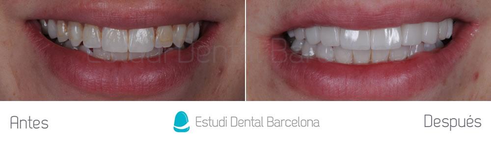 dientes-manchados-y-composite-viejo-antes-y-despues-carillas-frente