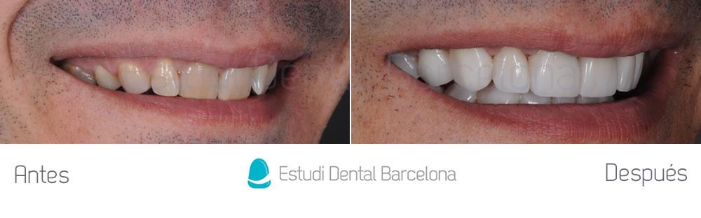 dientes-oscuros-y-malposicion-dental-antes-y-despues-derecha