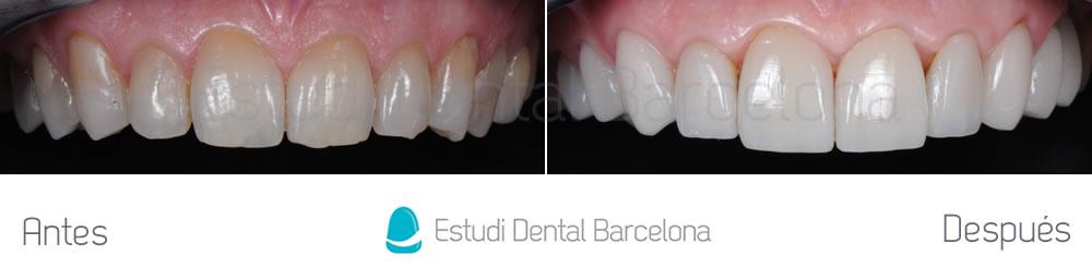 dientes-oscuros-y-rejuvenecimiento-de-sonrisa-caso-de-carillas-antes-y-despues-arcada-superior