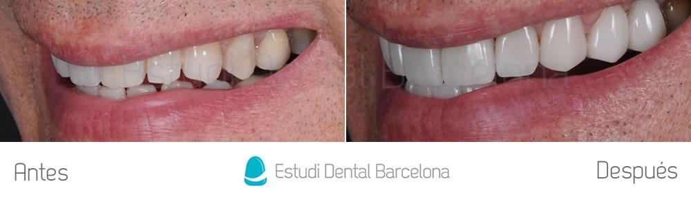 dientes-oscuros-y-rejuvenecimiento-de-sonrisa-caso-de-carillas-antes-y-despues-izquierda