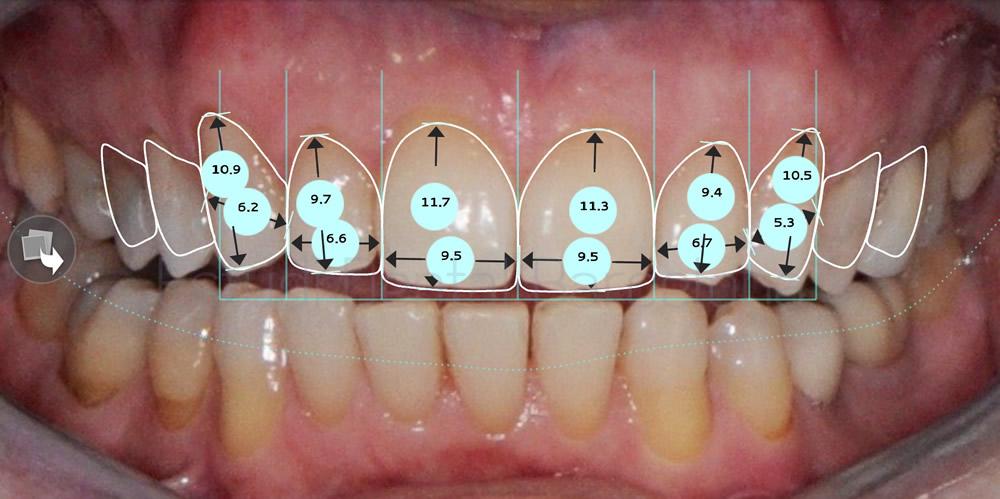 dientes-oscuros-y-rejuvenecimiento-de-sonrisa-caso-de-carillas-proporciones