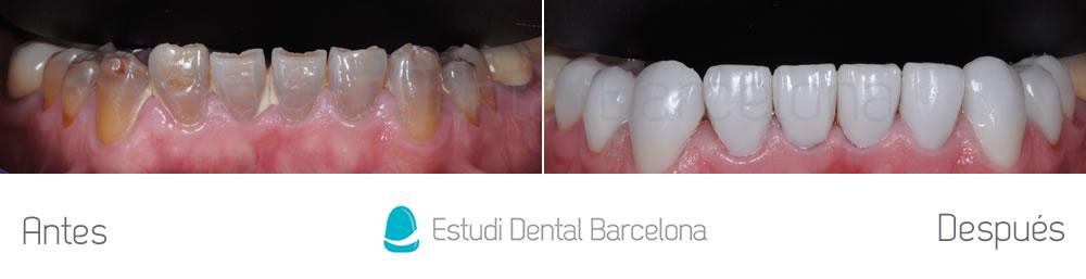 dientes-oscuros-y-tetraciclinas-caso-clinico-carillas-aracada-inferior