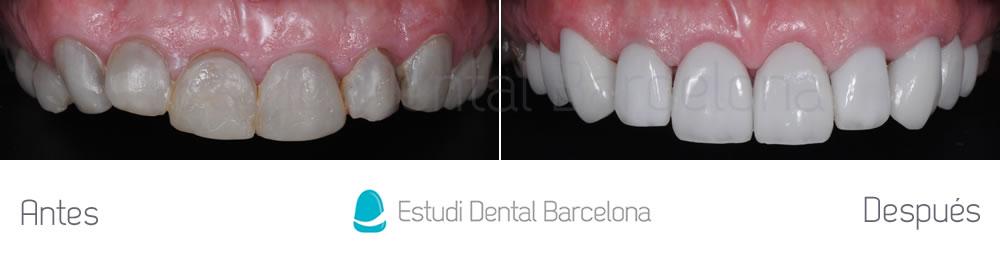 dientes-oscuros-y-tetraciclinas-caso-clinico-carillas-aracada-superior