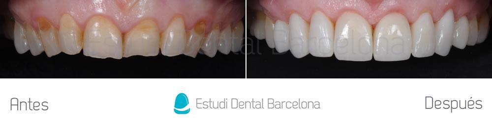 dientes-rotos-y-desgastados-antes-y-despues-carillas-dentales-arcada-superior