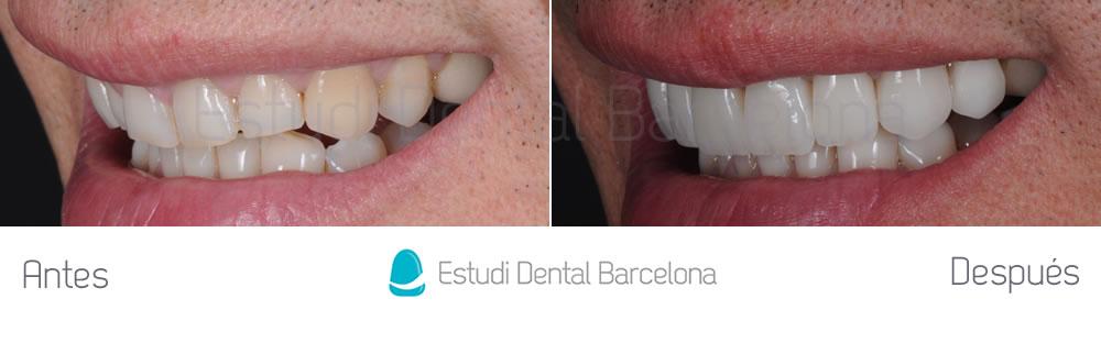 dientes-rotos-y-exceso-de-encia-antes-y-despues-carillas-dentales-izquierda