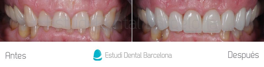 dientes-rotos-y-exceso-de-encia-antes-y-despues-carillas-dentales-apretando