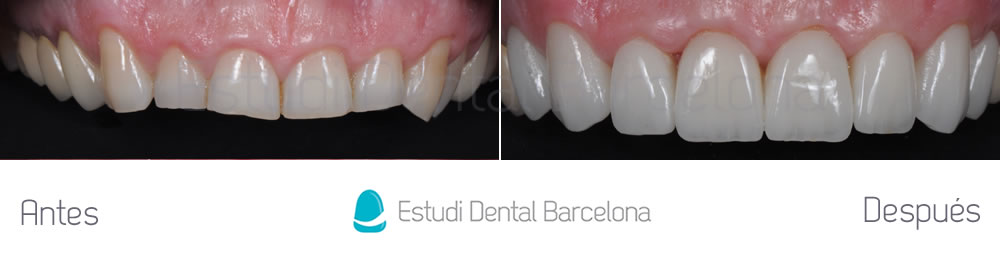 dientes-rotos-y-exceso-de-encia-antes-y-despues-carillas-dentales-arcada-superior