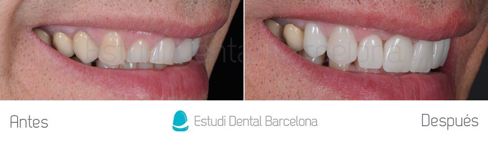 dientes-rotos-y-exceso-de-encia-antes-y-despues-carillas-dentales-derecha