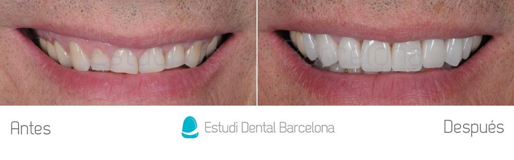 dientes-rotos-y-exceso-de-encia-antes-y-despues-carillas-dentales-frente
