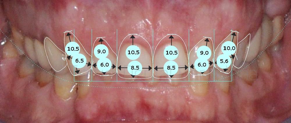 dientes-rotos-y-exceso-de-encia-antes-y-despues-carillas-dentales-proporciones