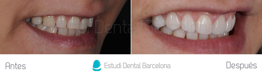 espacios-abiertos-entre-dientes-carillas-dentales-antes-y-despues-derecha