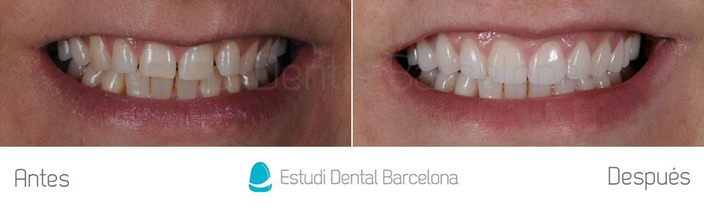 espacios-abiertos-entre-dientes-carillas-dentales-antes-y-despues-frente