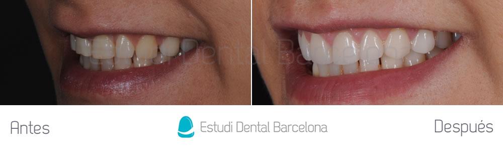 espacios-abiertos-entre-dientes-carillas-dentales-antes-y-despues-izquierda
