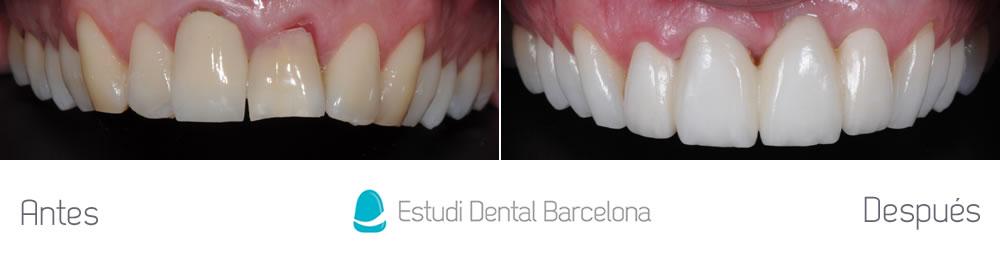 fractura-dental-y-corona-vieja-antes-y-despues-carillas-arcada-superior