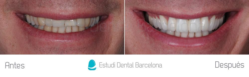 fractura-dental-y-corona-vieja-antes-y-despues-carillas-frente