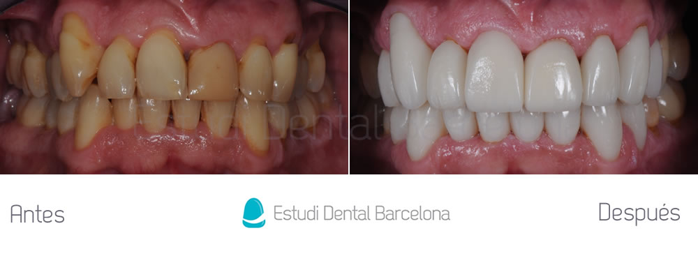 malposicion-dental-y-dientes-amarillos-antes-y-despues-carillas-apretando