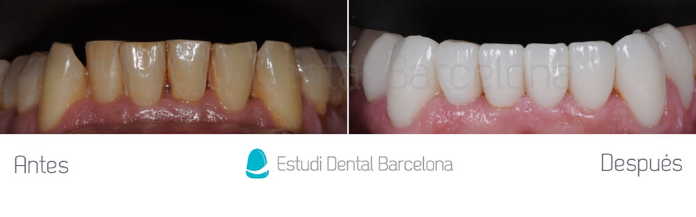 malposicion-dental-y-dientes-amarillos-antes-y-despues-carillas-arcada-inferior
