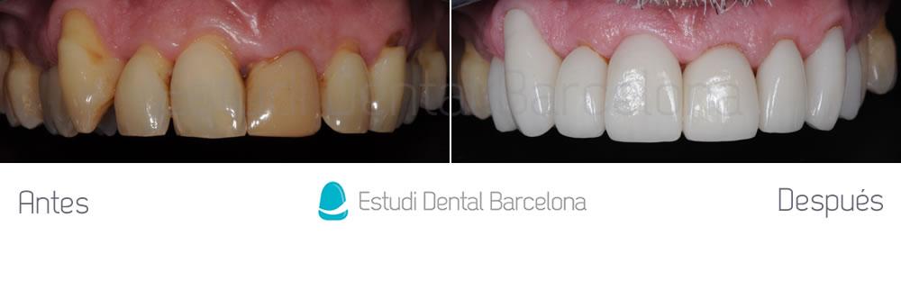 malposicion-dental-y-dientes-amarillos-antes-y-despues-carillas-arcada-superior