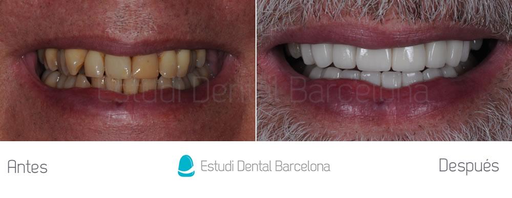 malposicion-dental-y-dientes-amarillos-antes-y-despues-carillas-frente