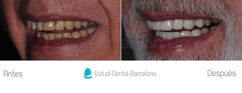 malposicion-dental-y-dientes-amarillos-antes-y-despues-carillas-izquierdaa