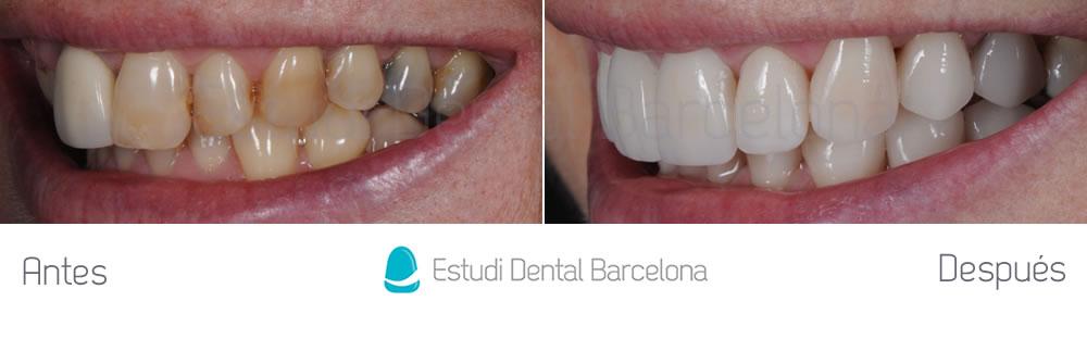 malposicion-y-rejuvenecimiento-dental-antes-y-despues-carillas-dentales-izquierda