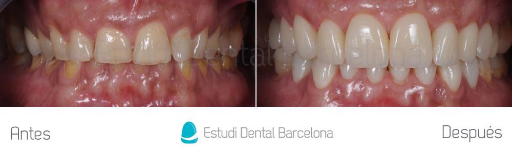 caso-mejorar-dientes-desgastados-con-carillas-dentales-frente-apretando