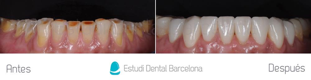 caso-mejorar-dientes-desgastados-con-carillas-dentales-frente-inferior