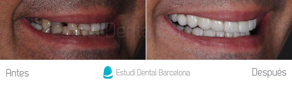 chadesgaste-dental-y-encias-retraidas-antes-y-despues-carillas-dentales-frente