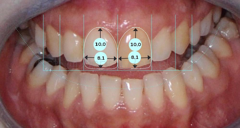 Corregir-dientes-manchados-y-rotos-con-carillas-de-porcelana-y-blanqueamiento-proporciones-caso