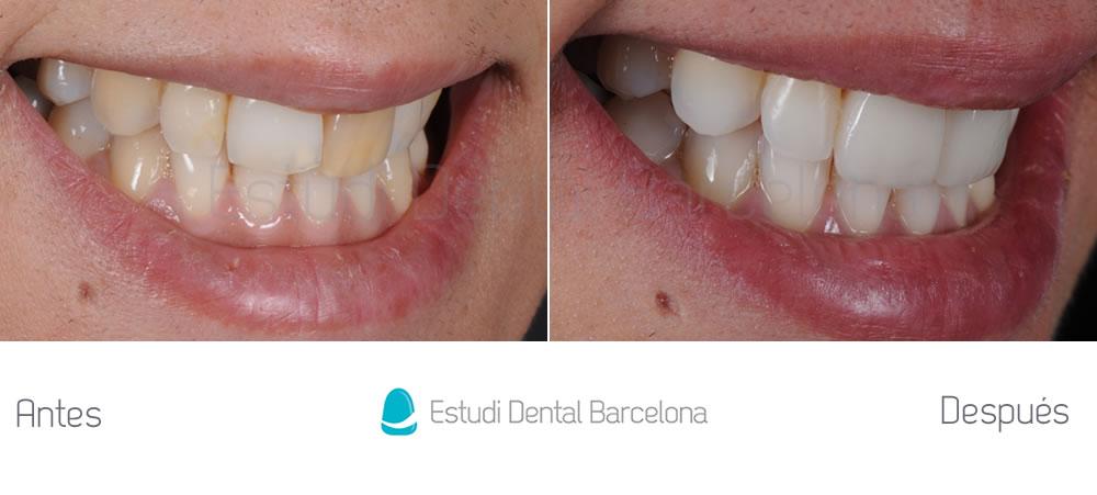Corregir-dientes-oscuros-con-carillas-de-porcelana-y-blanqueamiento-caso-antes-y-después-derecha