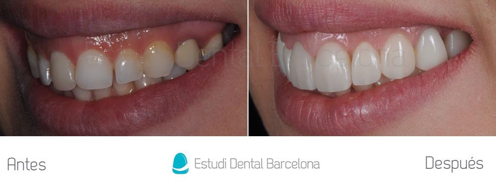 Dientes-mas-grandes-caso-clínico-carillas-dentales-implantes-e-invisalign-izquierda