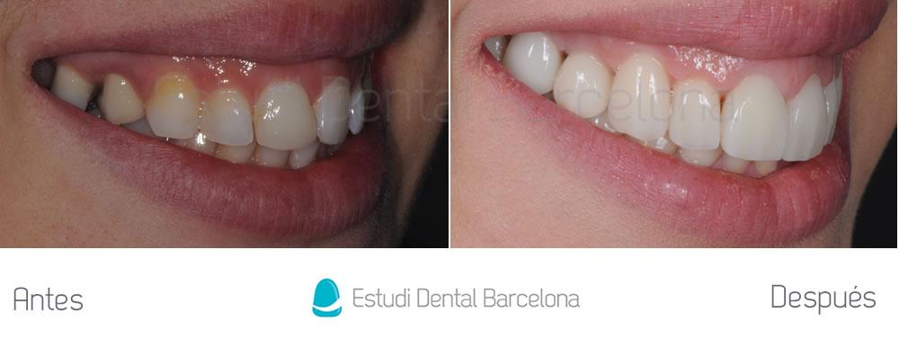 Dientes-mas-grandes-caso-clínico-carillas-dentales-implantes-e-invisalign