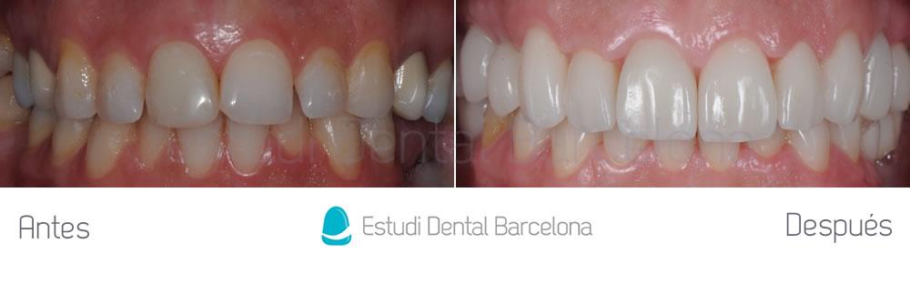 Invisalign-Carillas-de-Porcelana-e-Implantes-Dentales-caso-clínico-apretando