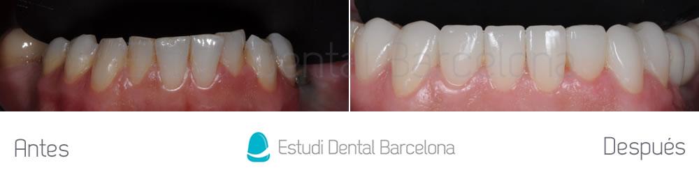 carillas-dentales-implantes-y-invisalign-antes-y-despues-arcada-inferior