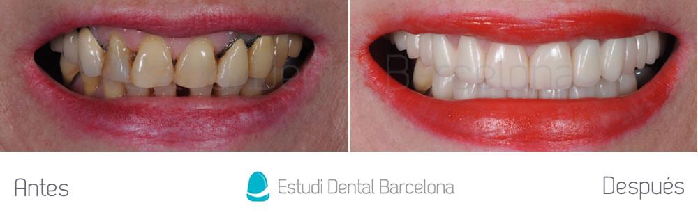 mejorar-aspecto-de-los-dientes-con-carillas-y-coronas-dentales-y-blanqueamiento-fotos-frente