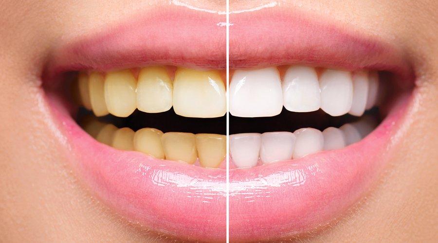 Por qué tengo los dientes amarillos y cómo evitarlo? - Estudi Dental  Barcelona