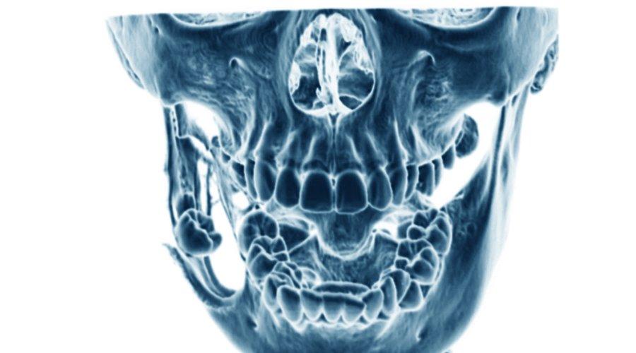 Qué es el quiste maxilar? Causas y tratamiento - Estudi Dental Barcelona