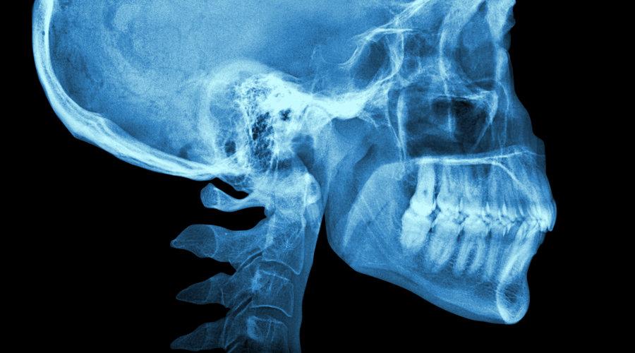 La telerradiografía o radiografía lateral de cráneo, ¿qué es y ...