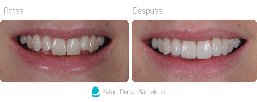 Carillas de Porcelana Estética Dental Barcelona