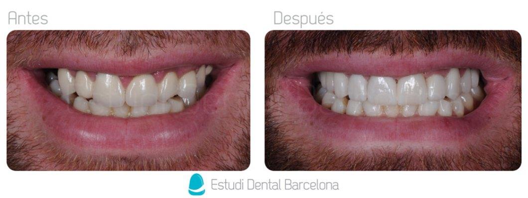 Protesis Dentales en Barcelona