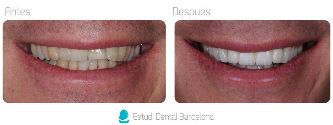 Protesis Zirconio Barcelona