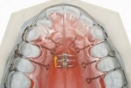ortopedia funcional ortodoncia en Barcelona