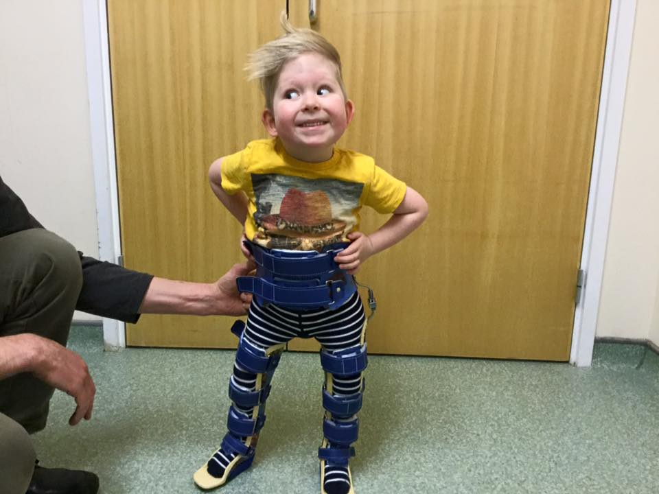 Noah Wall o menino sem cérebro aprendeu a falar e a andar