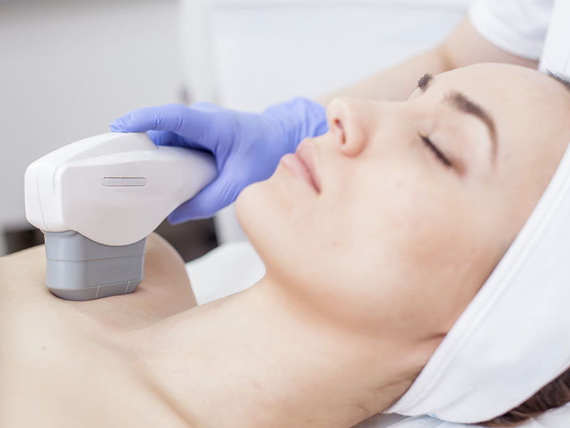 Laser Skin Tightening Service