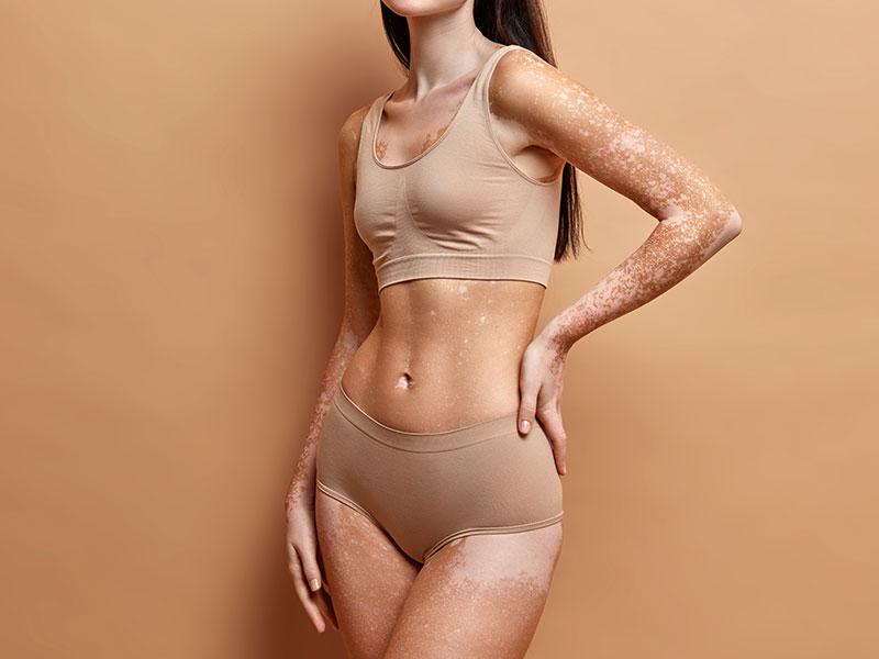 Paramedical Skin Restoration