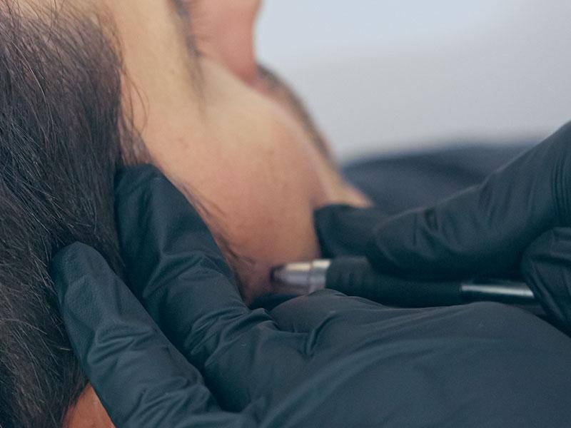 Scalp Micropigmentation For Men