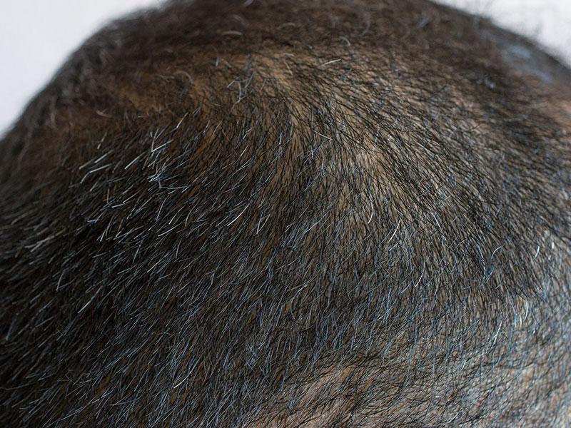 Scalp Micropigmentation Effects