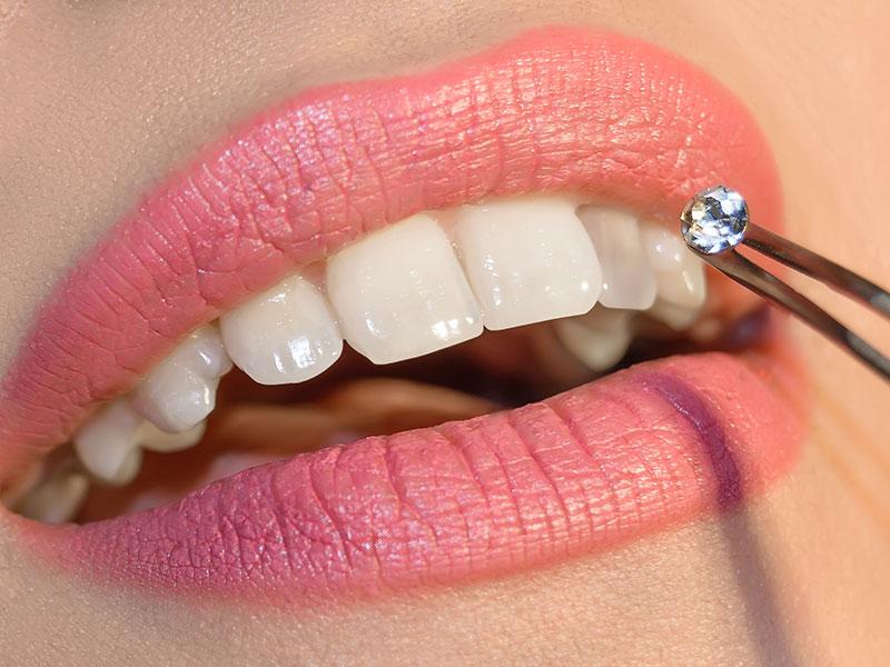 Tooth Gem Application