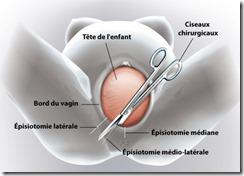 mater-episiotomie-clinique-du-mousseau-evry