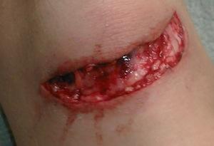 laceration_2